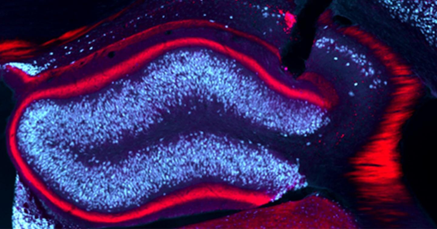Image of the hippocampus in a mouse model of epilepsy, which researchers successfully targeted with light to prevent epileptic activity and its spread to other brain regions