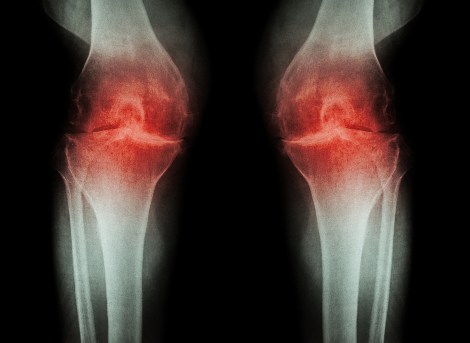 Osteoarthritis reversed in rats with experimental drug combo