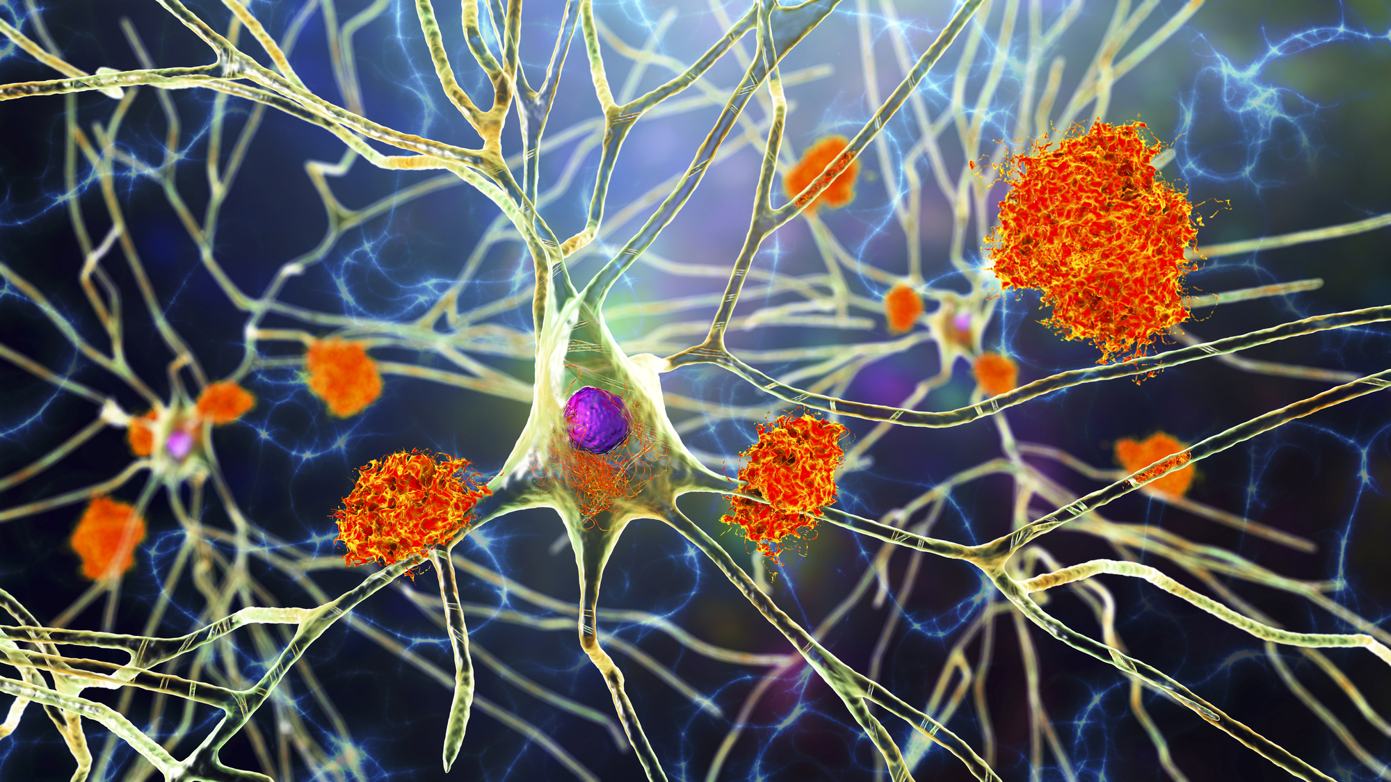 An artist's impression of amyloid plaques forming in the brain, which scientists hope to tackle as a way of treating Alzheimer's