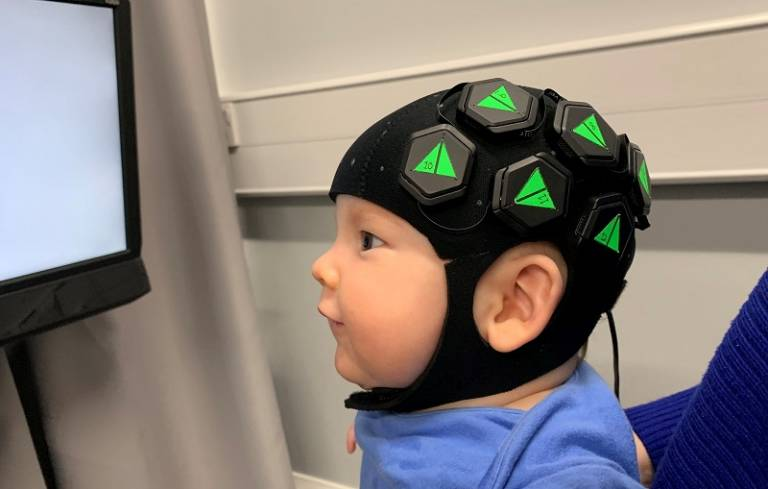 The device uses near-infrared light to measure brain activity with a resolution similar to that of MRI