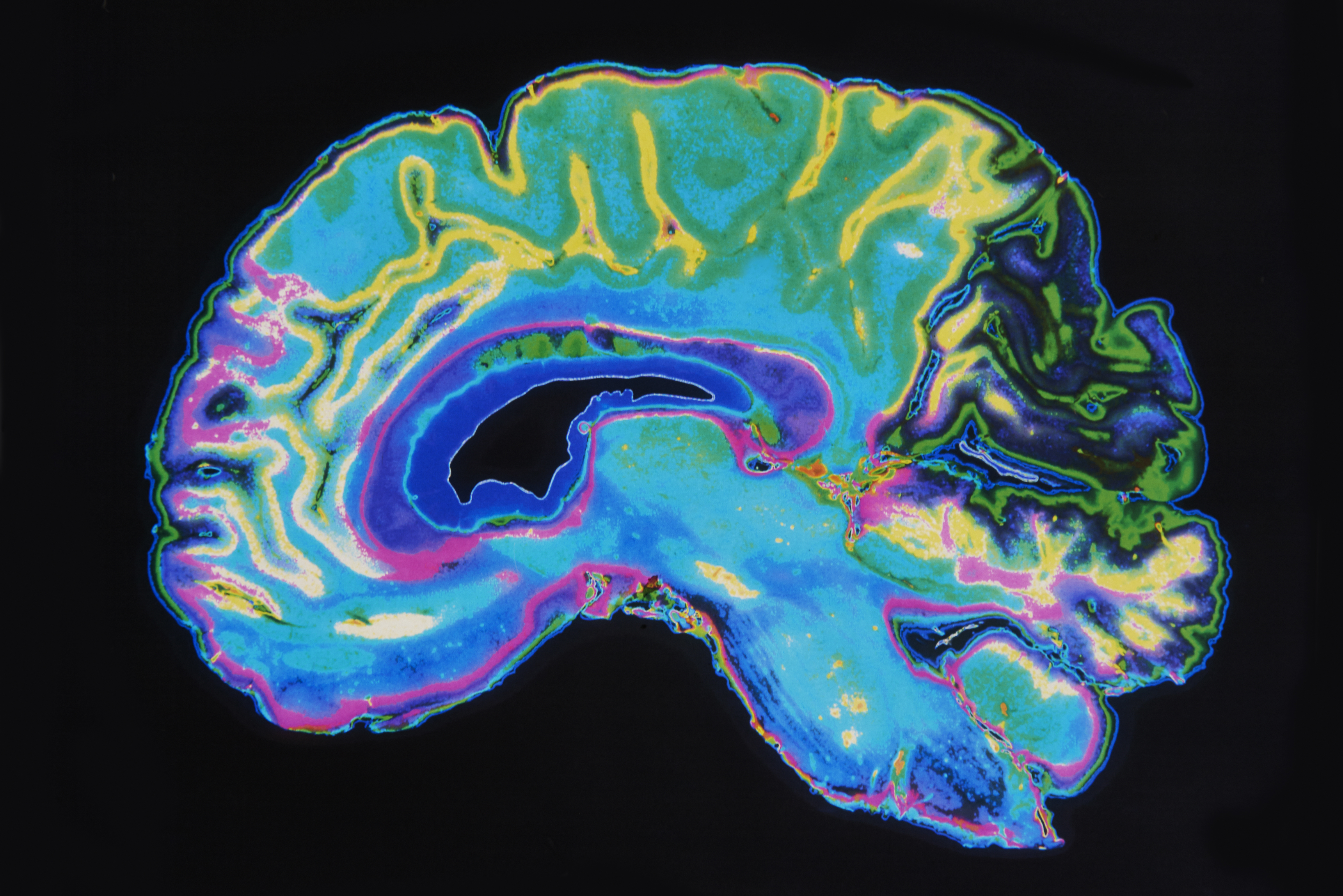 Researchers have shown that an enzyme called HDAC1 helps repair DNA damage and fight off age-related cognitive decline