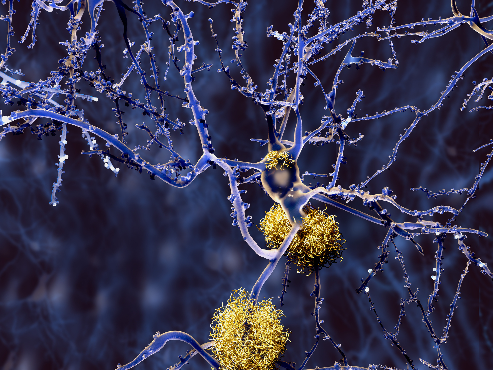 Novel protein suggested as core of Alzheimer's amyloid plaques