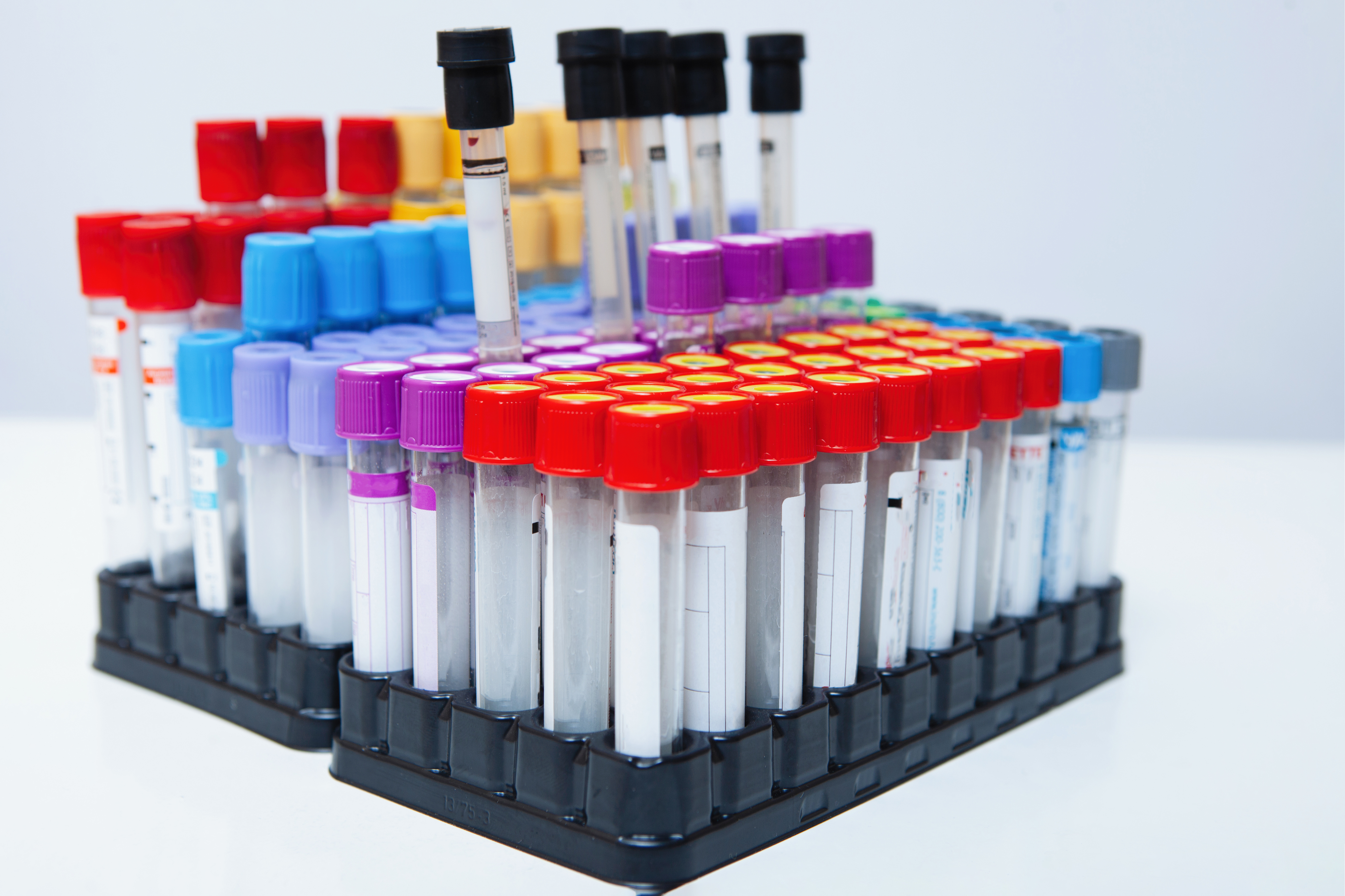 "Prostate cancer blood test promises ""paradigm shift"""