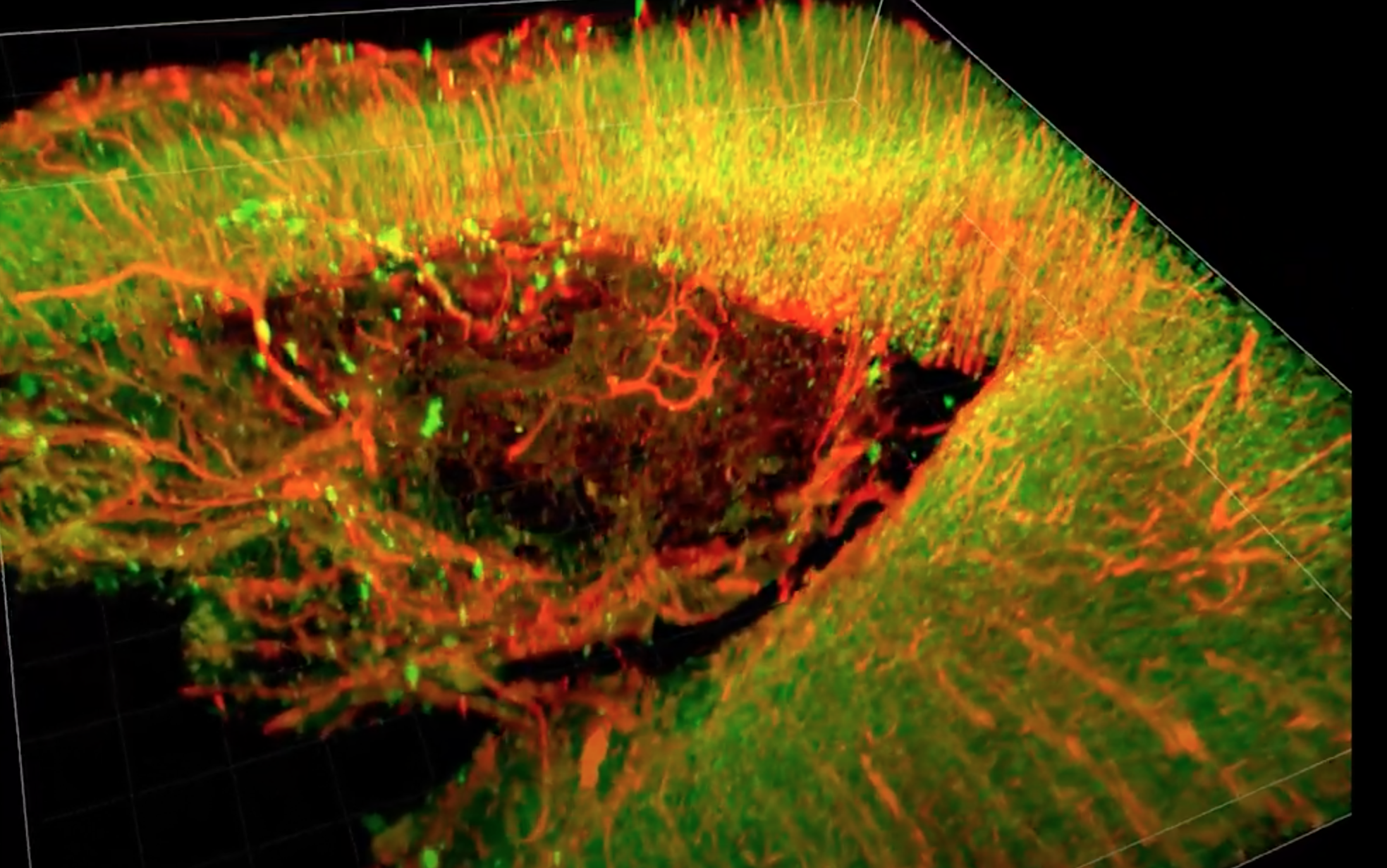 A 3D image of a recovering injured rat brain treated with a newly developed