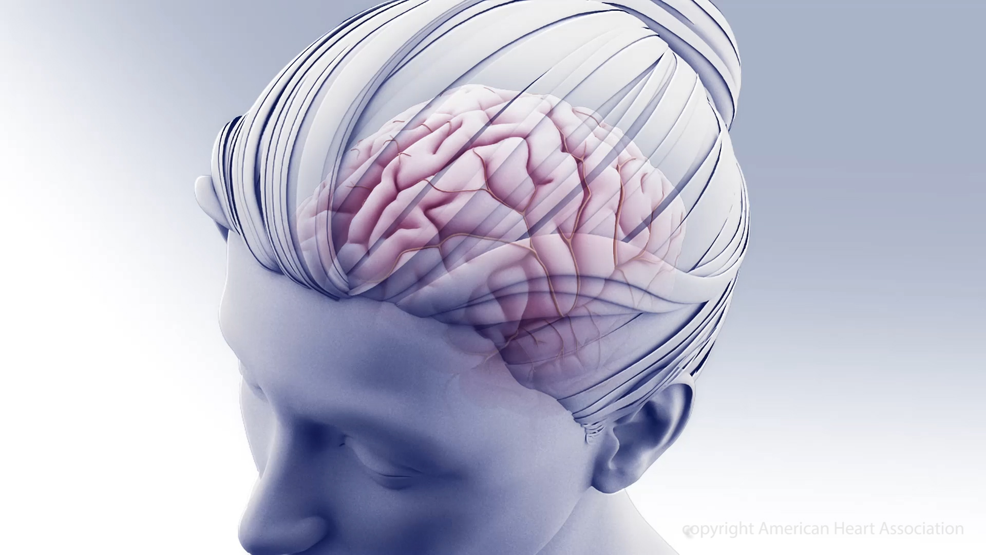 Treating high blood pressure may slow cognitive decline