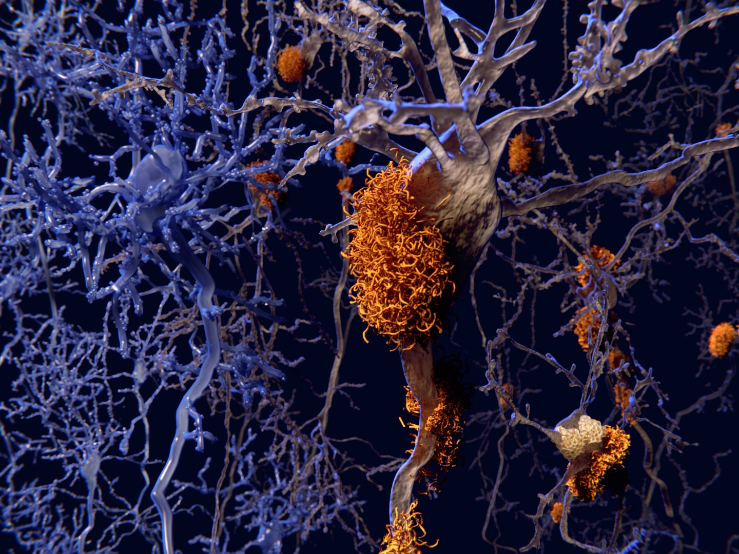New Alzheimer's hypothesis suggests cellular garbage disposal system could be key to prevention
