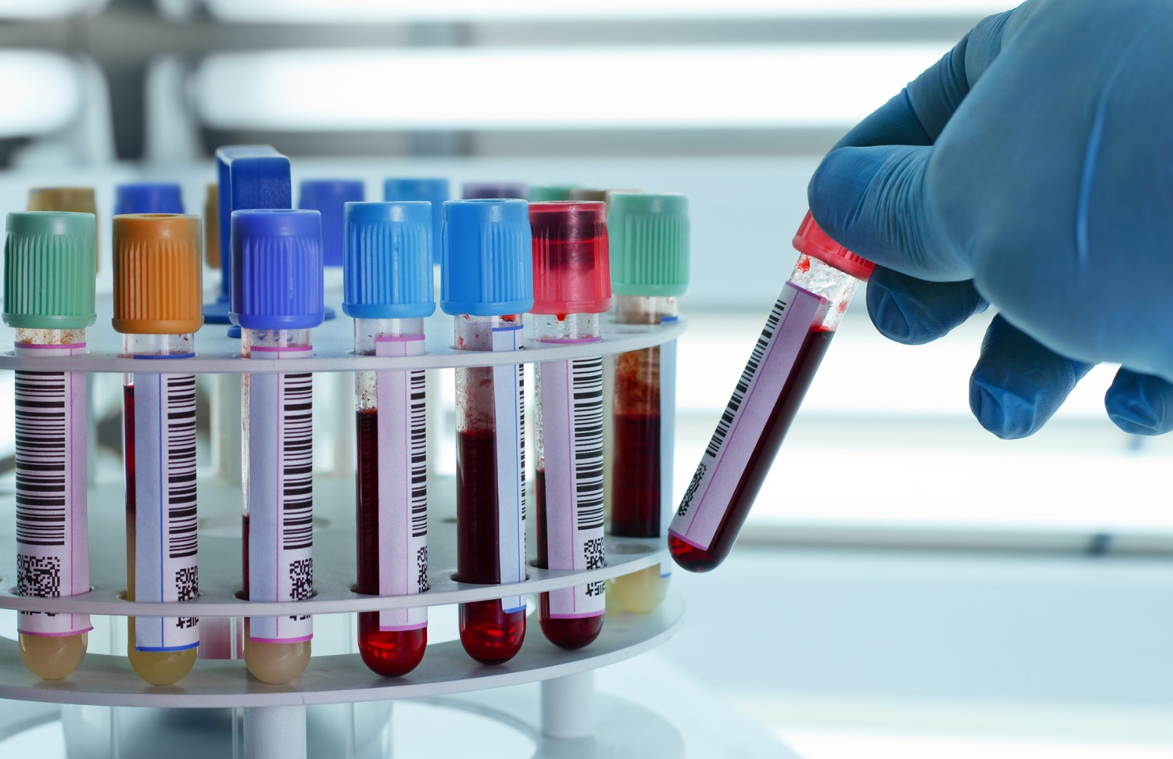 New Study Adds Key Piece To Autism >> Potential Blood And Urine Test For Autism Greeted With