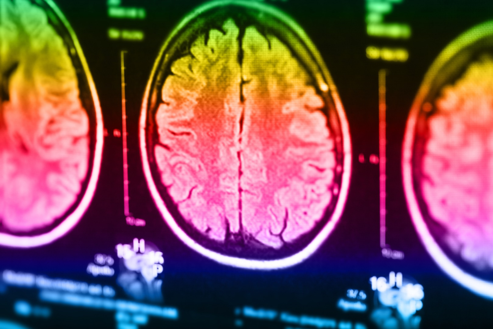 Marine Study Examines Stress Brain >> Inside The Head Of A Killer Imaging Study Uncovers Unique