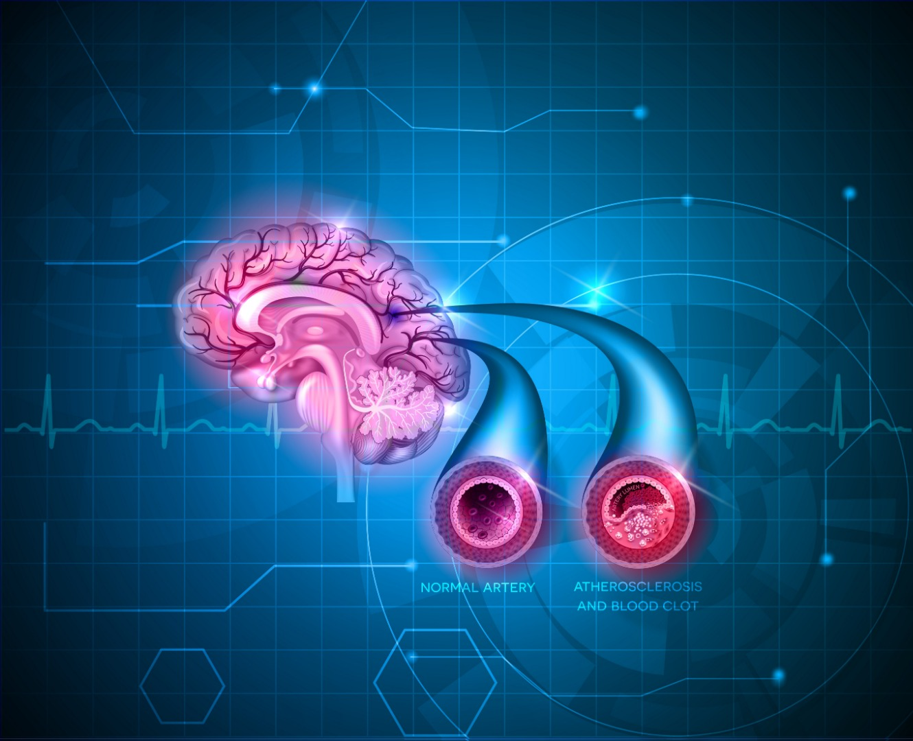 Common hypertension drug boosts blood flow to the brains of Alzheimer's patients