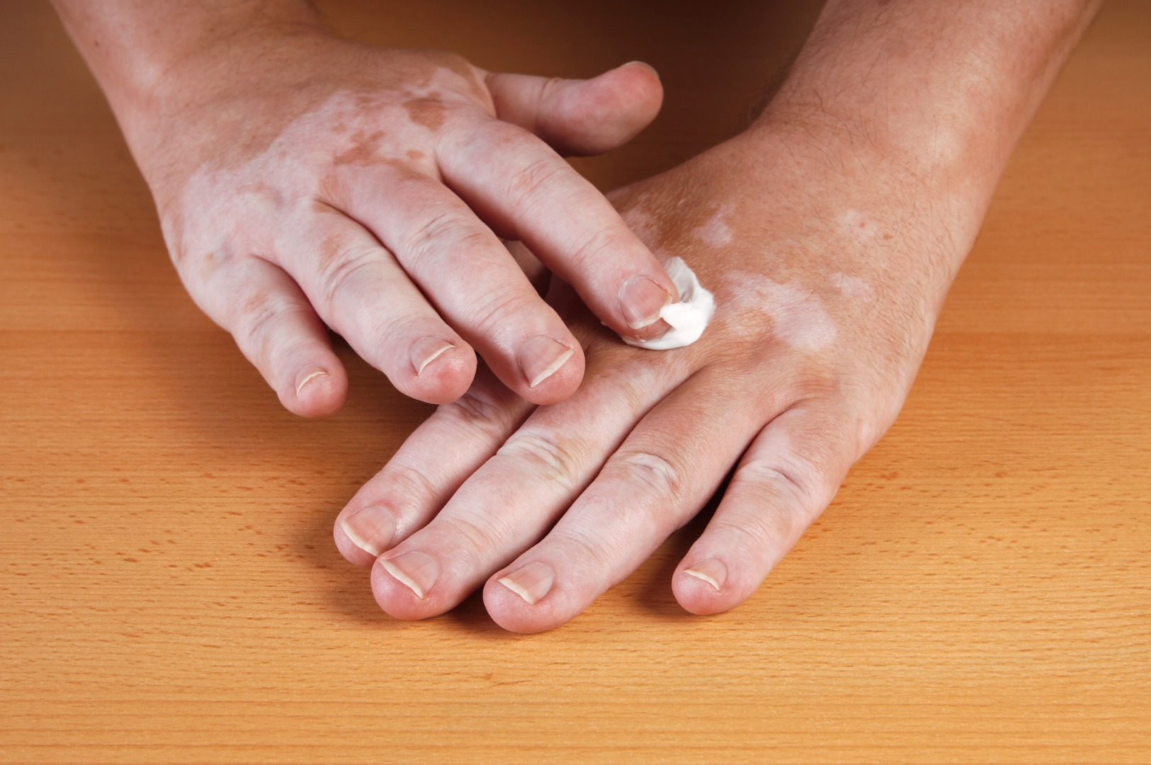 Existing drug for blood problems is used to treat vitiligo
