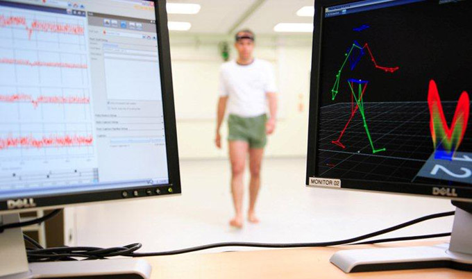 Walking patterns can diagnose different types of dementia