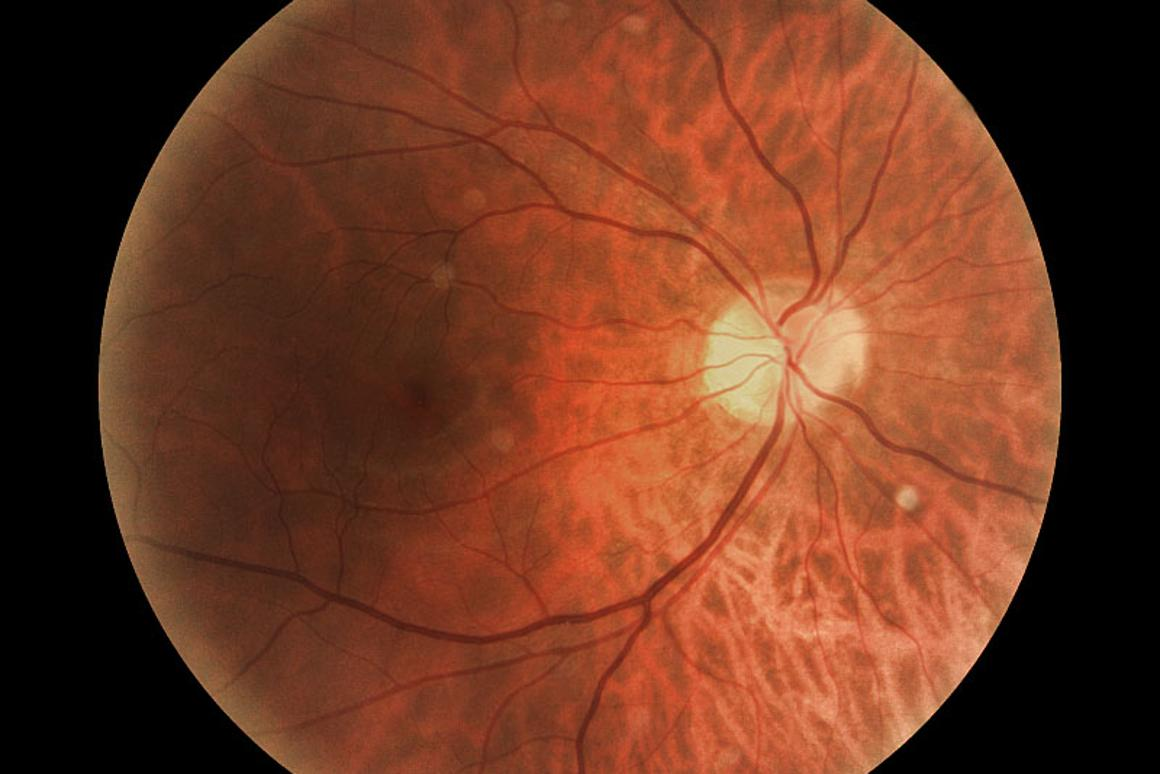 The back of the retina, with the beginning of the optic nerve in the white area