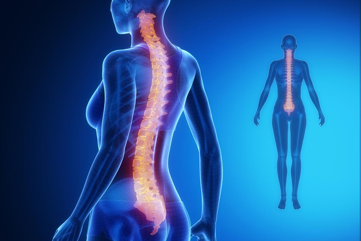 Spasticity, a side effect that occurs in around 70 percent of spinal cord injury sufferers, could be alleviated by an already approved drug