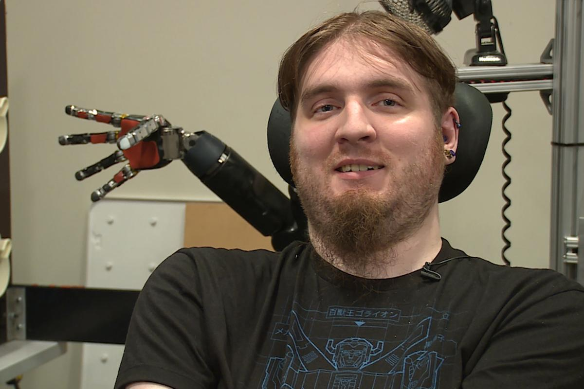 Nathan Copeland, paralyzed for over 10years, has been able to experience the sensation of touch againthrough a robotic arm developed by the University of Pittsburgh and UPMC