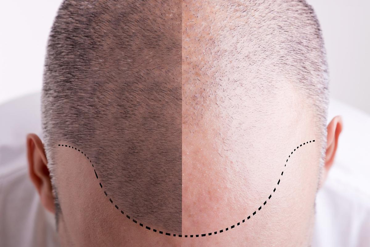 Though still a while away, hair regrowth science continues to inch toward real-world applications