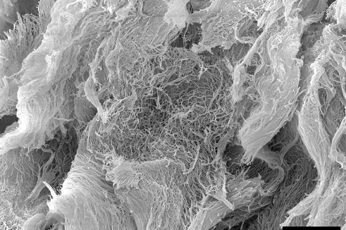 A scanning electron microscope image of the injectable cancer-fighting hydrogel, dubbed STINGel