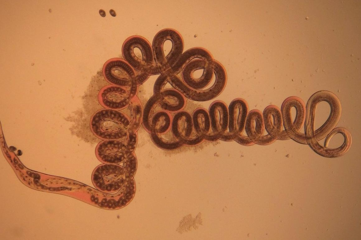 This parasitic worm, Heligmosomoides polygyrus, has been found to reduce incidences of obesity in mouse experiments