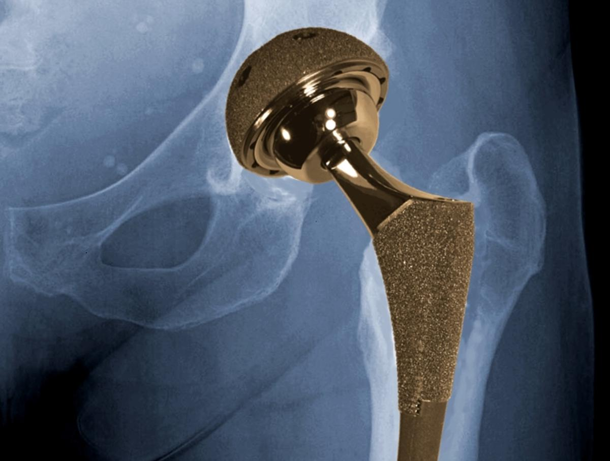 A new discovery regarding a naturally-occurring lubricating layer on artificial hip joints could lead to longer-lasting prosthetic hips