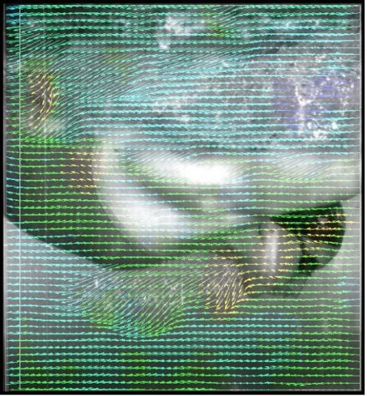 Digital Particle Image Velocimetry video-based flow measurement technique