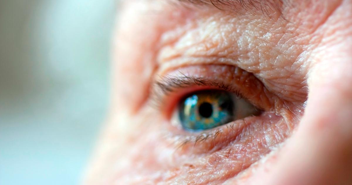 Alzheimer's may be detected early, via eye exam