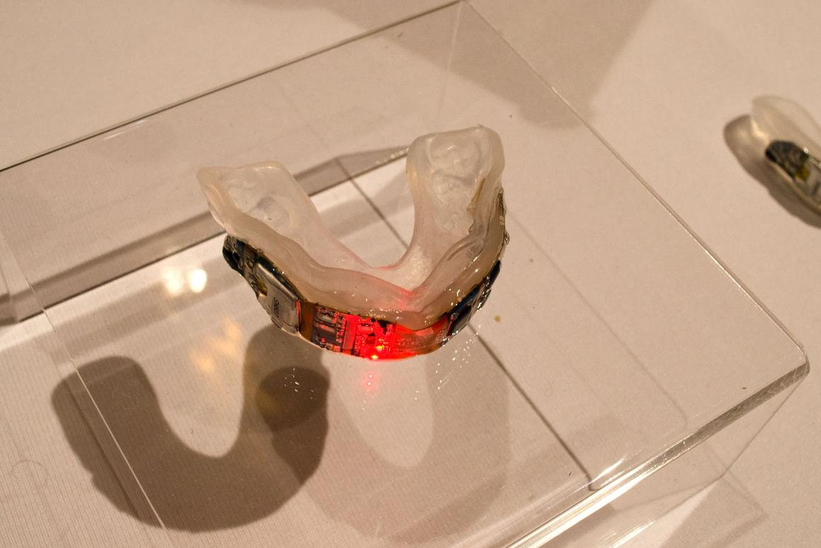 Prevent Biometric mouthguard lights up with a red LED when a potentially harmful head impact has been detected
