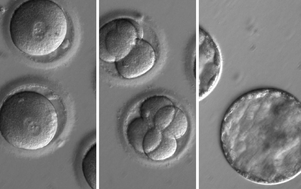 The developing embryo, which was injected with a mutation-carrying sperm and an enzyme to repair that mutation