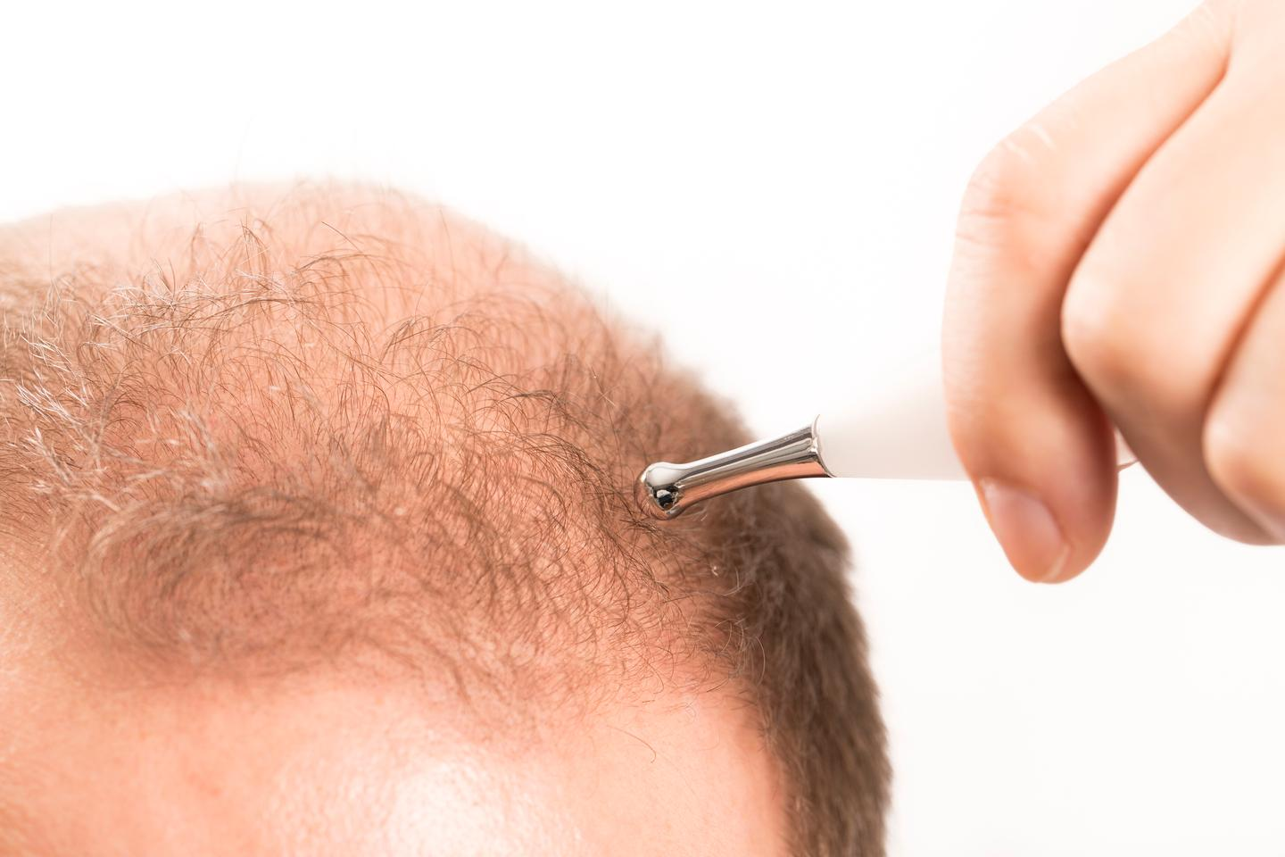 Scientists have identified a new mechanism that causes hair follicle stem cells to lose their ability to regenerate