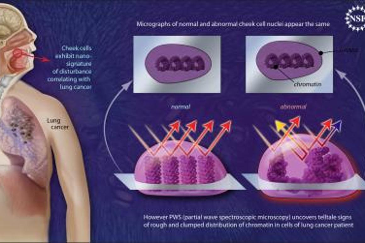 Nano-scale disturbances in cheek cells indicate the presence of lung cancer.Image by: Zina Deretsky, National Science Foundation