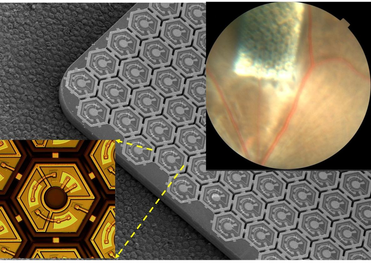 The photovoltaic chip is implanted under the retina in a blind rat (upper right corner) – it is comprised of an array of photodiodes (center and lower left) (Image: Palanker Laboratory/Stanford University)