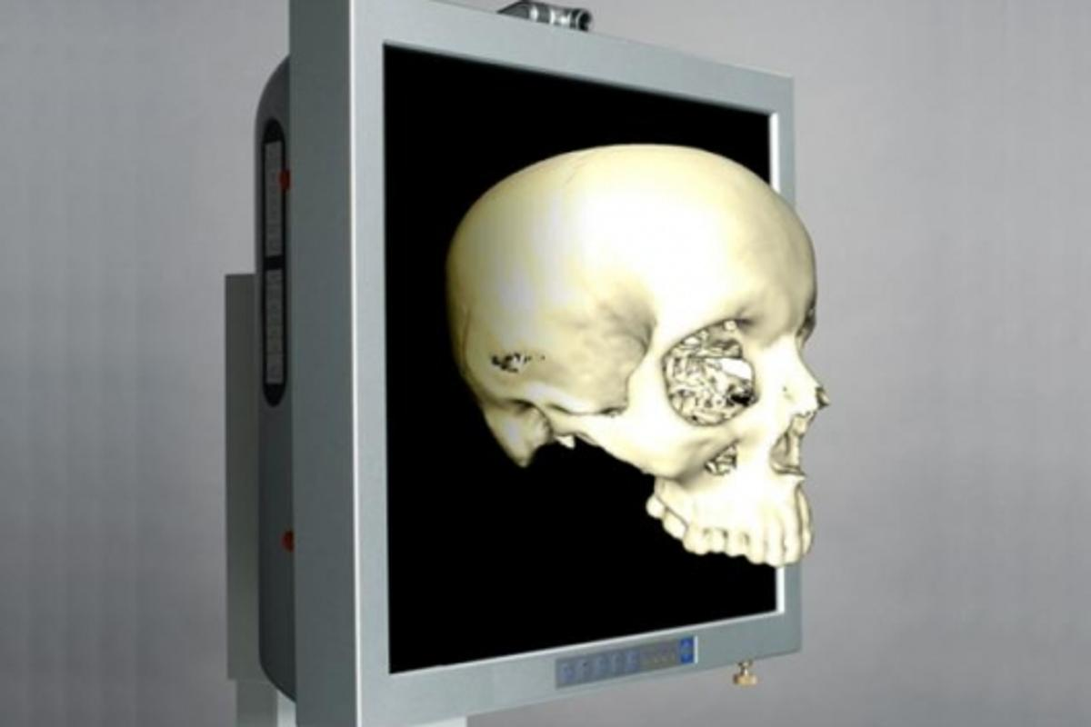 The physician can rotate the three-dimensional image and look at it from all angles merely by pointing a finger.Photo: Fraunhofer HHI