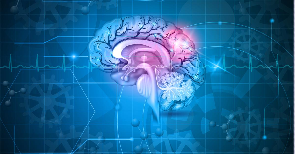 White blood cell mutation may drive early stages of dementia