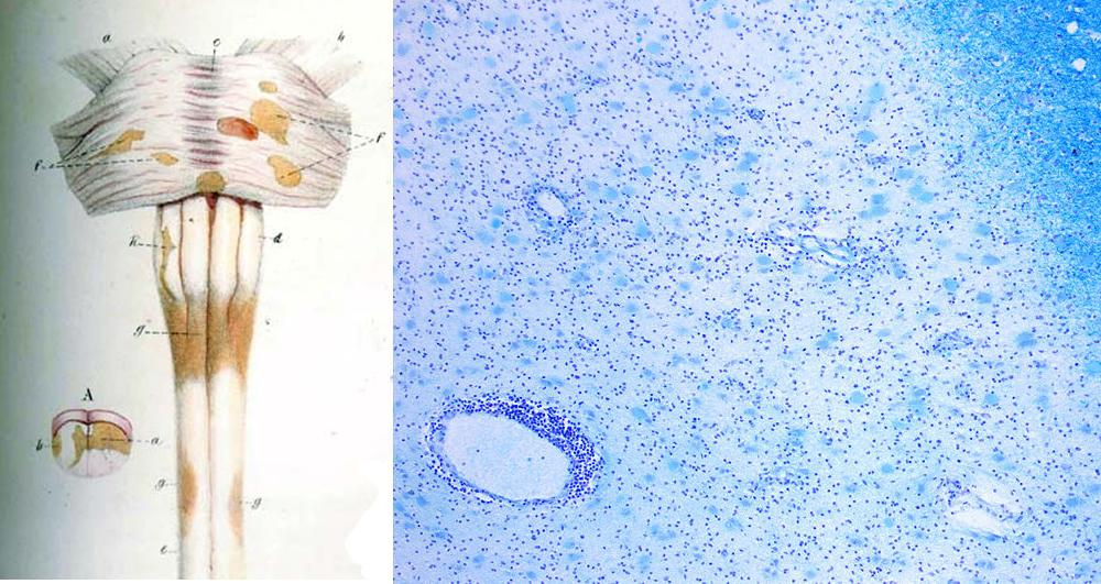 Left: diagram from a medical text showing how MS affects the myelin sheathing of nerves. Right: MS lesions under a microscope.
