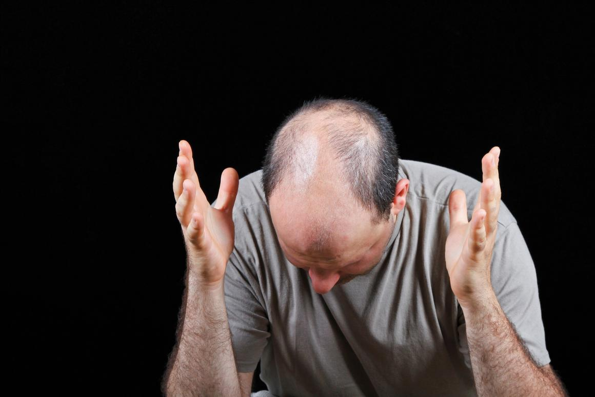 Experimental drug reverses fatty diet-induced hair loss and