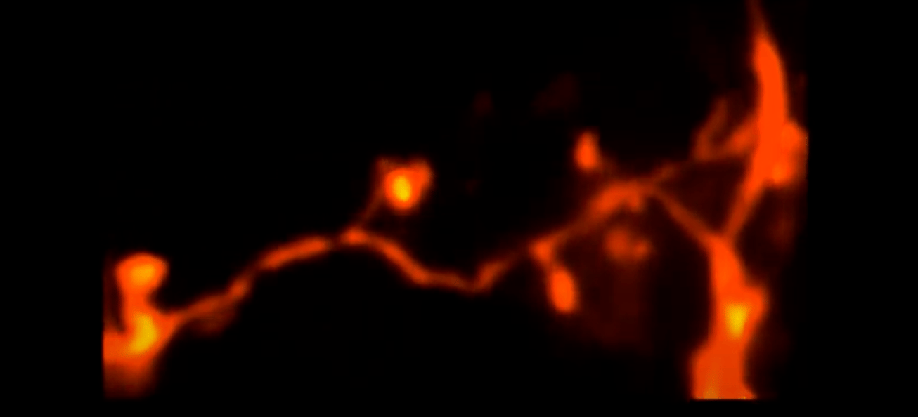 """A 3D-2PE-STED microscopy image of tiny """"twigs"""" on a neuron in a living mouse brain"""