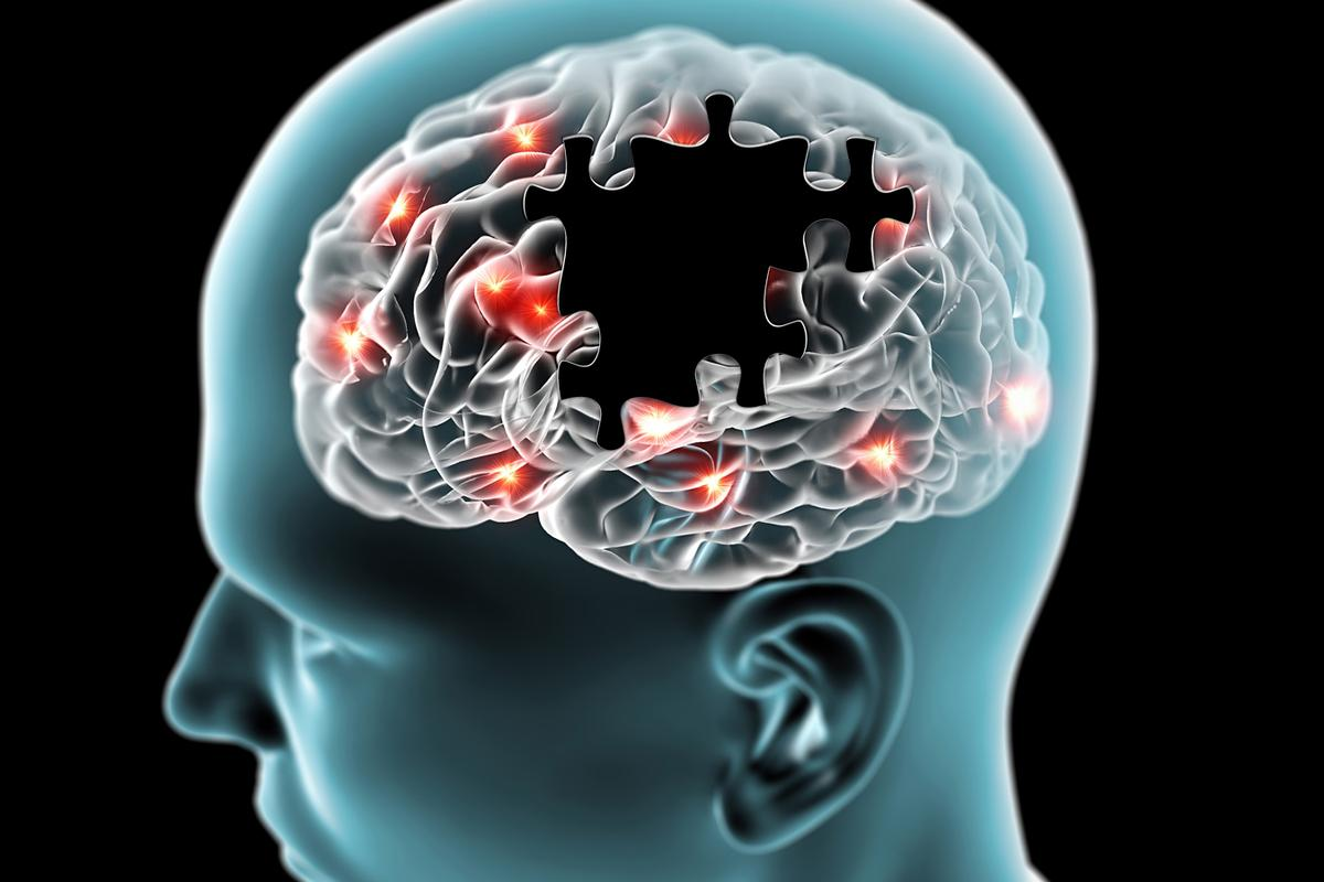 Researchers at the University of Queensland have claimed an effective new, non-invasive method to treat Alzheimer's disease by using a form of ultrasound therapy (Photo: Shutterstock)