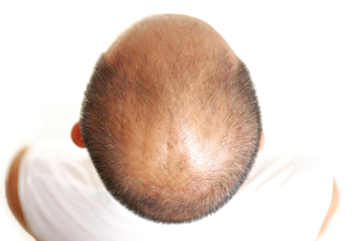 Scientists have found that by suppressing the activity of enzymes in hair follicles, they may be able to treat certain types of hair loss