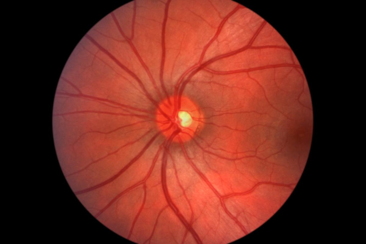 iPhones can now be used to obtain high-quality images of the retina (Photo: Shutterstock)