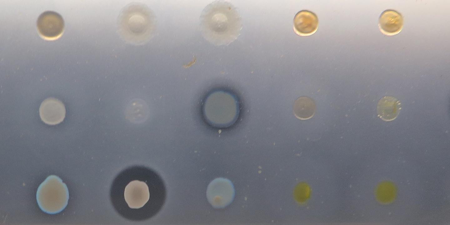 The new antibiotic shows off its skills at inhibiting bacterial growth in the samples in the middle of the middle row, and the second from the left on the bottom row