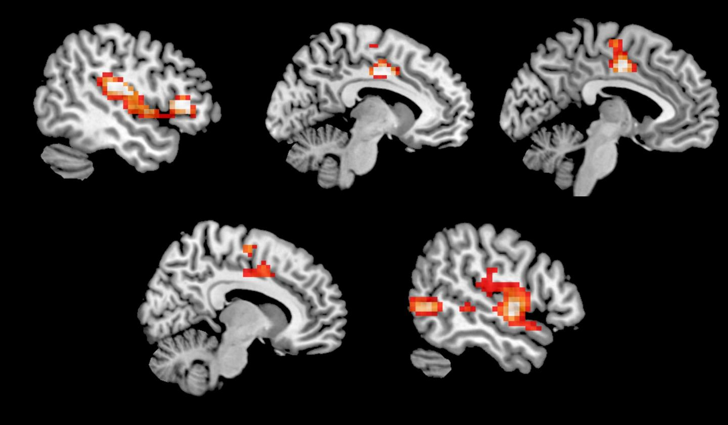 Image highlighting which brain regions displayed increased activity on MDMA compared to aplacebo