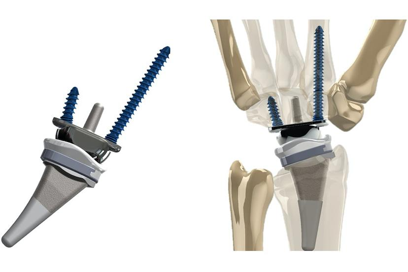 The KinematX Total Wrist Implant, pictured on its own and as implanted