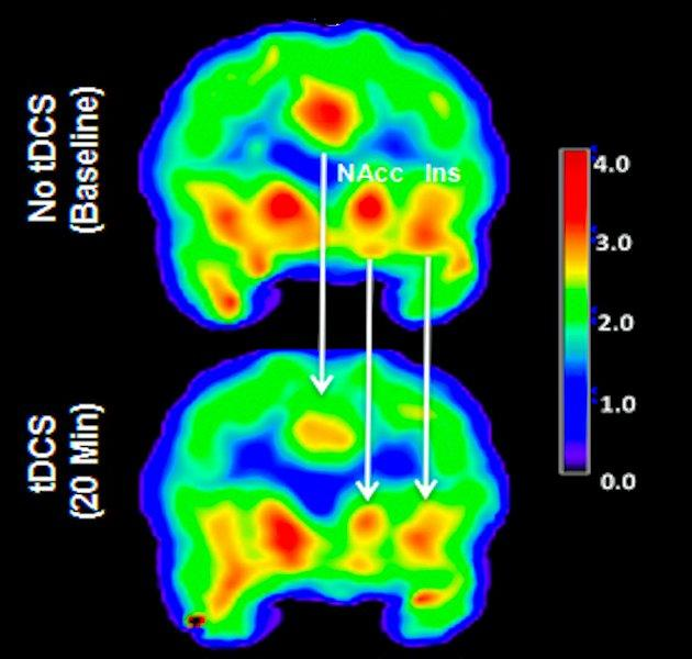 PET scan of a patient's brain before and after tDCS stimulation with red and yellow showing regions with large numbers of available mu-opioid receptors