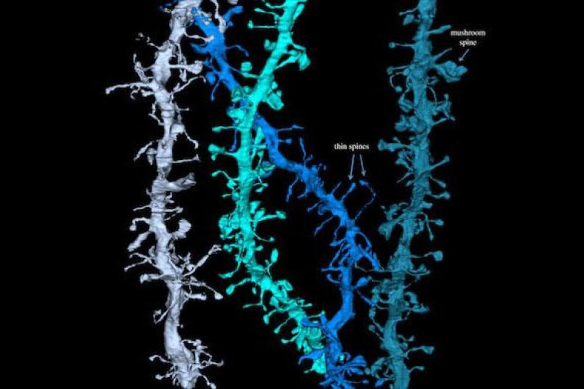 3D reconstructions of electron microscope images of tree branch-like dendrites
