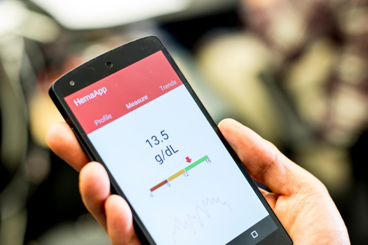 دوربین های گوشی های هوشمند می توانند دیابت نوع 2 را با دقت 80 درصد تشخیص دهند PPG