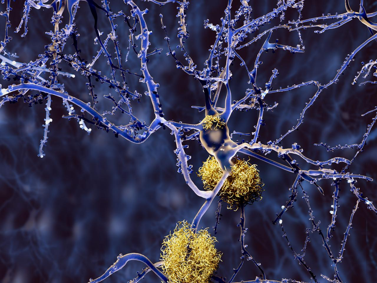 Amyloid-beta plaques in the brain are one of the potential culprits behind Alzheimer's disease