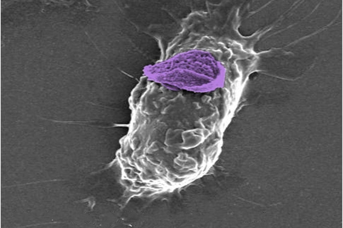 "A macrophage loaded up with a ""backpack,"" seen in purple"