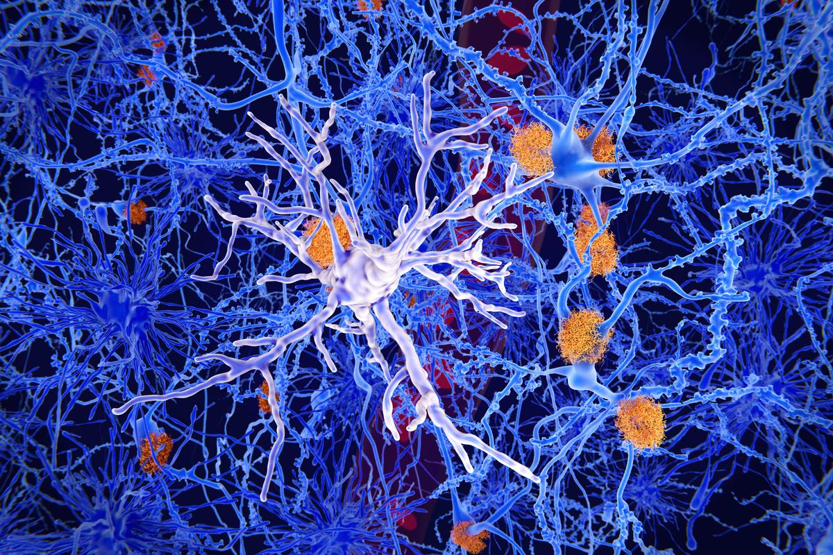 Microglia are immune cells in the brain that eat pathogens - and now, it seems they may also repair dendrites