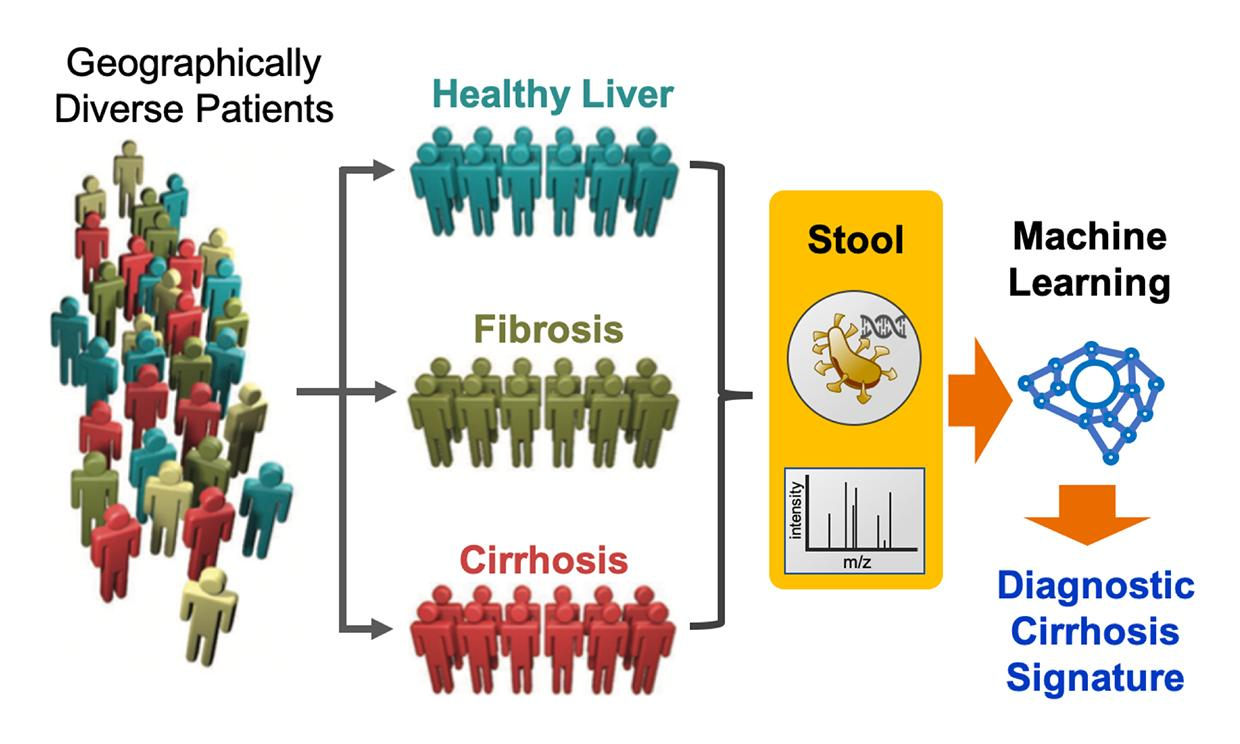 The researchers behind a new study have demonstrated how a machine learning algorithm can detect advanced liver disease, even among subjects from different populations