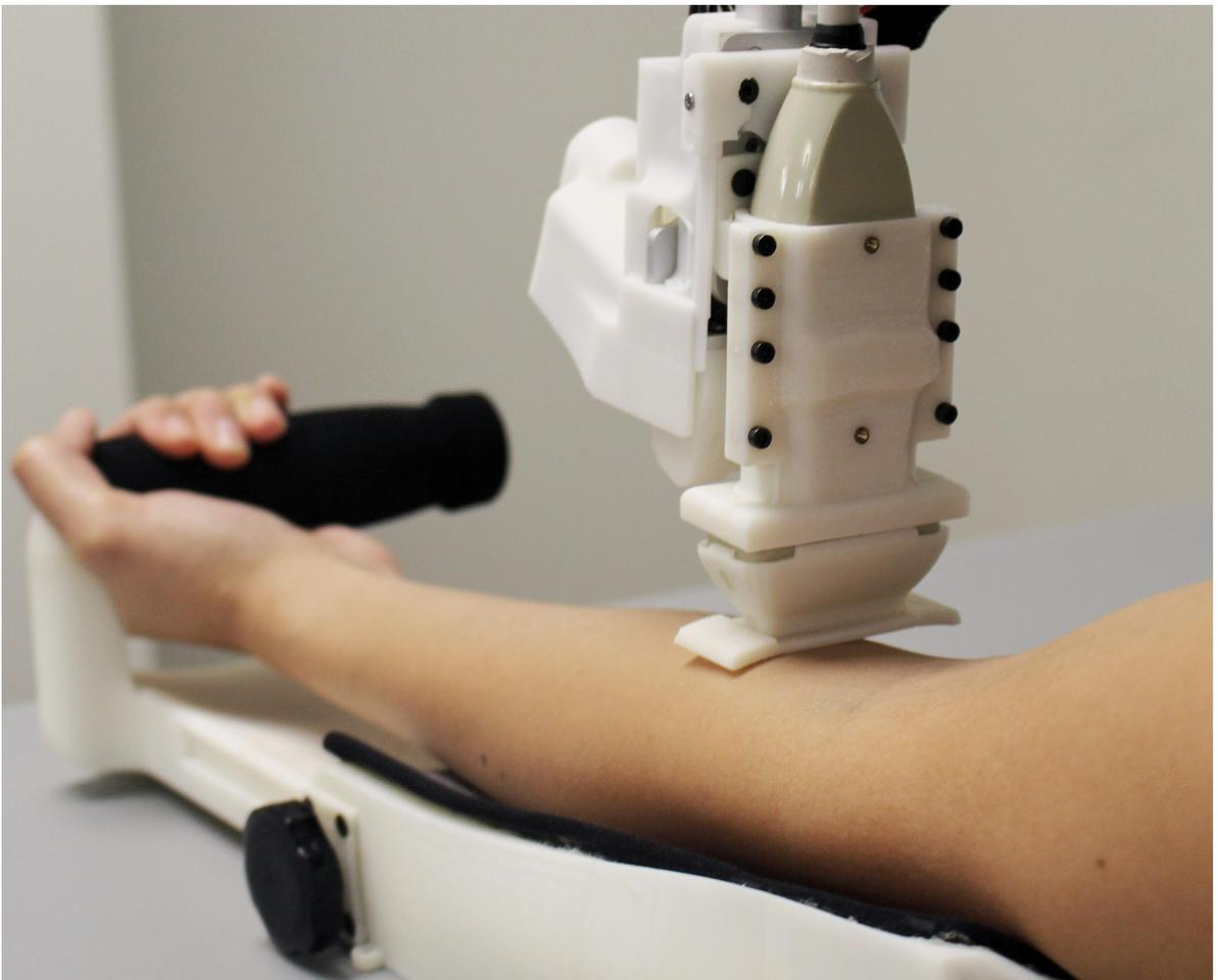 Blood-sampling robot excels in first human trials