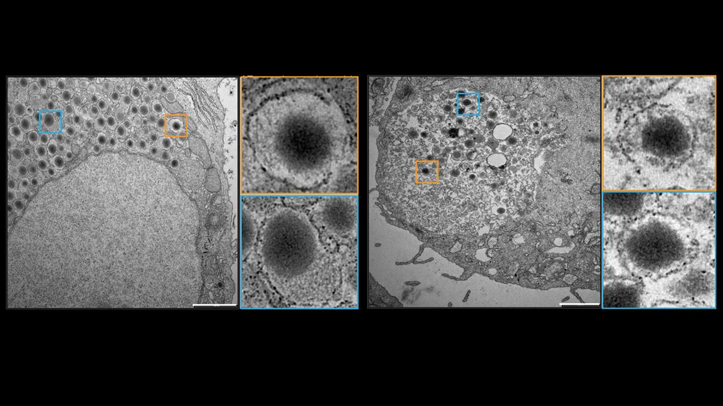 The beta cells produced by the EHT Zurich researchers (right) were found to be similar to their naturally occurring counterparts (left) in both appearance and function