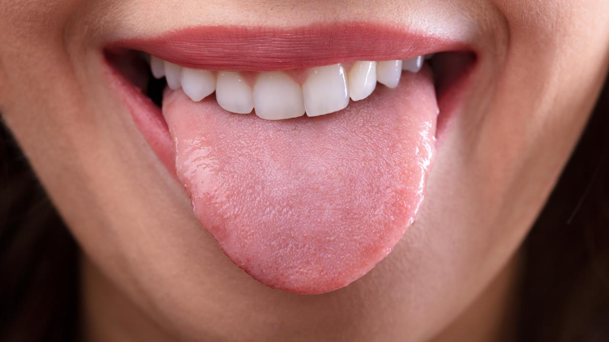 Reduction in tongue fat linked to less severe sleep apnea
